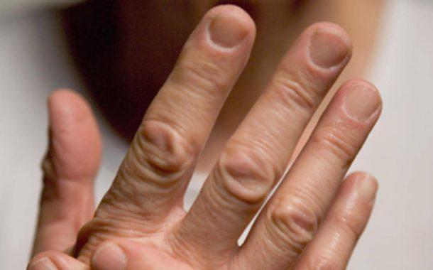 درمان روماتیسم با طب سنتی