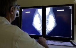 تلاش غربالگری ژنتیکی کمک می کند تا ریشه های سرطان سینه را دقیقا مشخص کند
